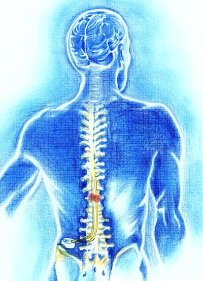 neuroestimulador-medular-2